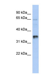 UBAC2 antibody LS-C111698 Western blot of 721_B cell lysate.  This image was taken for the unconjugated form of this product. Other forms have not been tested.