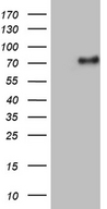 UBASH3A / CLIP4 Antibody - HEK293T cells were transfected with the pCMV6-ENTRY control. (Left lane) or pCMV6-ENTRY UBASH3A. (Right lane) cDNA for 48 hrs and lysed. Equivalent amounts of cell lysates. (5 ug per lane) were separated by SDS-PAGE and immunoblotted with anti-UBASH3A. (1:2000)