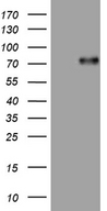 UBASH3A / CLIP4 Antibody - HEK293T cells were transfected with the pCMV6-ENTRY control. (Left lane) or pCMV6-ENTRY UBASH3A. (Right lane) cDNA for 48 hrs and lysed. Equivalent amounts of cell lysates. (5 ug per lane) were separated by SDS-PAGE and immunoblotted with anti-UBASH3A. (1:500)