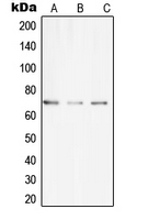 UBASH3A / CLIP4 Antibody - Western blot analysis of CLIP4 expression in THP1 (A); SP2/0 (B); H9C2 (C) whole cell lysates.