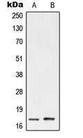 UBE2A+B Antibody - Western blot analysis of UBE2A/B expression in HeLa (A); Jurkat (B) whole cell lysates.