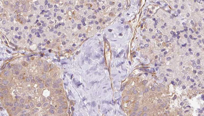 UBE2E2 / UBCH8 Antibody - 1:100 staining human thyroid carcinoma tissue by IHC-P. The sample was formaldehyde fixed and a heat mediated antigen retrieval step in citrate buffer was performed. The sample was then blocked and incubated with the antibody for 1.5 hours at 22°C. An HRP conjugated goat anti-rabbit antibody was used as the secondary.