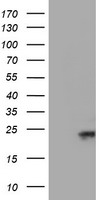 HEK293T cells were transfected with the pCMV6-ENTRY control (Left lane) or pCMV6-ENTRY UBE2E3 (Right lane) cDNA for 48 hrs and lysed. Equivalent amounts of cell lysates (5 ug per lane) were separated by SDS-PAGE and immunoblotted with anti-UBE2E3.
