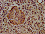 Immunohistochemistry image at a dilution of 1:500 and staining in paraffin-embedded human pancreatic cancer performed on a Leica BondTM system. After dewaxing and hydration, antigen retrieval was mediated by high pressure in a citrate buffer (pH 6.0) . Section was blocked with 10% normal goat serum 30min at RT. Then primary antibody (1% BSA) was incubated at 4 °C overnight. The primary is detected by a biotinylated secondary antibody and visualized using an HRP conjugated SP system.