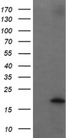 HEK293T cells were transfected with the pCMV6-ENTRY control (Left lane) or pCMV6-ENTRY UBE2G2 (Right lane) cDNA for 48 hrs and lysed. Equivalent amounts of cell lysates (5 ug per lane) were separated by SDS-PAGE and immunoblotted with anti-UBE2G2.