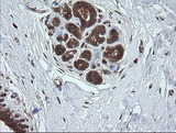 IHC of paraffin-embedded Human breast tissue using anti-UBE2G2 mouse monoclonal antibody.