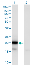 Western blot of UBE2G2 expression in transfected 293T cell line by UBE2G2 monoclonal antibody (M01), clone 5E1.