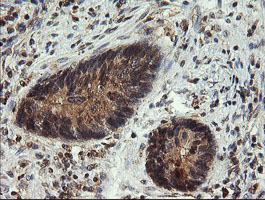 IHC of paraffin-embedded Adenocarcinoma of Human colon tissue using anti-UBE2G2 mouse monoclonal antibody. (Heat-induced epitope retrieval by 10mM citric buffer, pH6.0, 120°C for 3min).