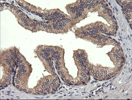 IHC of paraffin-embedded Human prostate tissue using anti-UBE2G2 mouse monoclonal antibody. (Heat-induced epitope retrieval by 10mM citric buffer, pH6.0, 120°C for 3min).