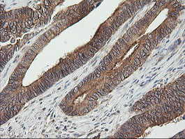 UBE2G2 Antibody - IHC of paraffin-embedded Adenocarcinoma of Human colon tissue using anti-UBE2G2 mouse monoclonal antibody. (Heat-induced epitope retrieval by 10mM citric buffer, pH6.0, 120°C for 3min).