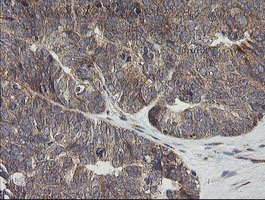 UBE2G2 Antibody - IHC of paraffin-embedded Adenocarcinoma of Human ovary tissue using anti-UBE2G2 mouse monoclonal antibody. (Heat-induced epitope retrieval by 10mM citric buffer, pH6.0, 120°C for 3min).