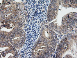 UBE2G2 Antibody - IHC of paraffin-embedded Adenocarcinoma of Human endometrium tissue using anti-UBE2G2 mouse monoclonal antibody. (Heat-induced epitope retrieval by 10mM citric buffer, pH6.0, 120°C for 3min).