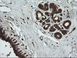 UBE2G2 Antibody - IHC of paraffin-embedded Human breast tissue using anti-UBE2G2 mouse monoclonal antibody.