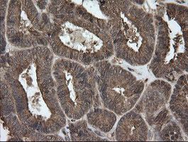 UBE2G2 Antibody - IHC of paraffin-embedded Adenocarcinoma of Human endometrium tissue using anti-UBE2G2 mouse monoclonal antibody.