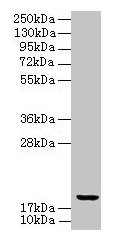 UBE2G2 Antibody - Western blot All lanes: UBE2G2 antibody at 8µg/ml Lane 1: HepG2 whole cell lysate Lane 2: Hela whole cell lysate Lane 3: A549 whole cell lysate Lane 4: Jurkat whole cell lysate Lane 5: MCF-7 whole cell lysate Lane 6: K562 whole cell lysate Secondary Goat polyclonal to rabbit IgG at 1/10000 dilution Predicted band size: 19, 16 kDa Observed band size: 19 kDa