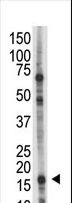The UBE2L6 Antibody is used in Western blot to detect UBE2L6 in HL-60 cell lysate.