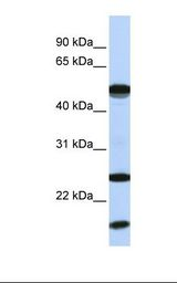 UBE2L6 Antibody - MCF7 cell lysate. Antibody concentration: 1.0 ug/ml. Gel concentration: 12%.  This image was taken for the unconjugated form of this product. Other forms have not been tested.