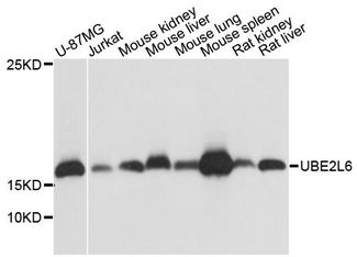 Western blot analysis of extracts of various cell lines, using UBE2L6 antibody at 1:1000 dilution. The secondary antibody used was an HRP Goat Anti-Rabbit IgG (H+L) at 1:10000 dilution. Lysates were loaded 25ug per lane and 3% nonfat dry milk in TBST was used for blocking. An ECL Kit was used for detection and the exposure time was 5s.