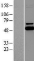UBE2Q1 Protein - Western validation with an anti-DDK antibody * L: Control HEK293 lysate R: Over-expression lysate