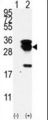 Western blot of E2EPF (arrow) using E2EPF Antibody. 293 cell lysates (2 ug/lane) either nontransfected (Lane 1) or transiently transfected with the UBE2S gene (Lane 2) (Origene Technologies).