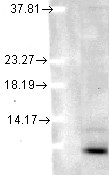 Ubiquitin (5B9-B3), in human cell lysates using a 1:1000 dilution.  This image was taken for the unconjugated form of this product. Other forms have not been tested.