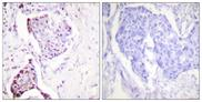 Immunohistochemistry analysis of paraffin-embedded human breast carcinoma tissue, using Ubiquitin Antibody. The picture on the right is blocked with the synthesized peptide.