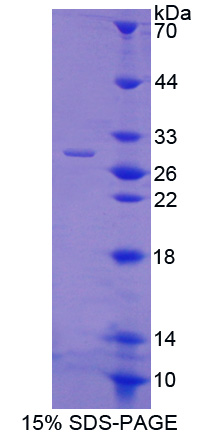 Ubiquitin Protein - Recombinant  Ubiquitin By SDS-PAGE