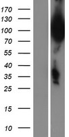 UBQLN3 Protein - Western validation with an anti-DDK antibody * L: Control HEK293 lysate R: Over-expression lysate