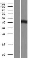 UBR7 / C14orf130 Protein - Western validation with an anti-DDK antibody * L: Control HEK293 lysate R: Over-expression lysate