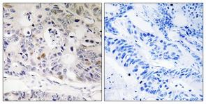 IHC of paraffin-embedded human colon carcinoma tissue, using UBTD1 Antibody. The picture on the right is treated with the synthesized peptide.