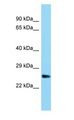 UBTD1 antibody Western Blot of Rat Muscle.  This image was taken for the unconjugated form of this product. Other forms have not been tested.