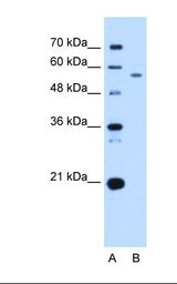 UBXD2 / UBXN4 Antibody - Lane A: Marker. Lane B: HepG2 cell lysate. Antibody concentration: 2.5 ug/ml. Gel concentration: 12%.  This image was taken for the unconjugated form of this product. Other forms have not been tested.
