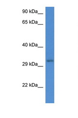 UBXN2A antibody Western blot of Rat Muscle lysate. Antibody concentration 1 ug/ml. This image was taken for the unconjugated form of this product. Other forms have not been tested.