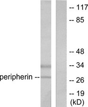 Western blot analysis of lysates from 293 cells, using PGP9.5 Antibody. The lane on the right is blocked with the synthesized peptide.