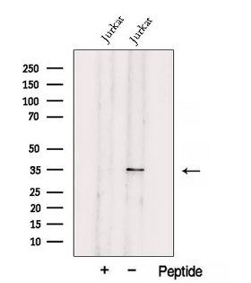 UCK2 Antibody - Western blot analysis of extracts of Jurkat cells using UCK2 antibody. The lane on the left was treated with blocking peptide.