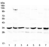 UCP2 Antibody - Western blot testing of 1) rat spleen, 2) rat heart, 3) rat brain, 4) mouse spleen, 5) mouse heart, 6) mouse brain and 7) human HeLa lysate with UCP2 antibody at 0.5ug/ml. Predicted molecular weight ~34 kDa.