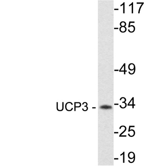 Western blot of UCP3 (R308) pAb in extracts from Jurkat cells.