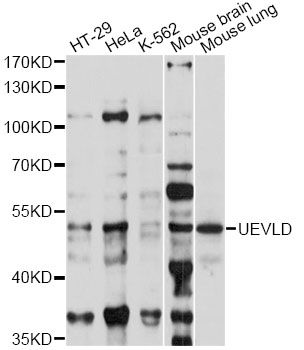 UEVLD Antibody - Western blot analysis of extracts of various cell lines, using UEVLD antibody at 1:1000 dilution. The secondary antibody used was an HRP Goat Anti-Rabbit IgG (H+L) at 1:10000 dilution. Lysates were loaded 25ug per lane and 3% nonfat dry milk in TBST was used for blocking. An ECL Kit was used for detection and the exposure time was 60s.