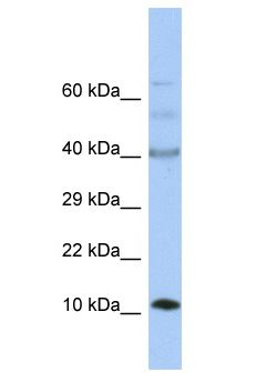 UFSP1 Antibody - UFSP1 antibody Western Blot of Fetal Small Intestine. Antibody dilution: 1 ug/ml.  This image was taken for the unconjugated form of this product. Other forms have not been tested.