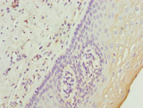 Immunohistochemistry of paraffin-embedded human cervical cancer at dilution 1:100