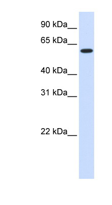 UGT8 antibody Western blot of Fetal Heart lysate. This image was taken for the unconjugated form of this product. Other forms have not been tested.