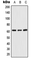 Western blot analysis of UGT8 expression in HeLa (A); Raw264.7 (B); SP2/0 (C) whole cell lysates.