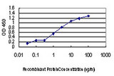 Detection limit for recombinant GST tagged ULK1 is approximately 0.03 ng/ml as a capture antibody.