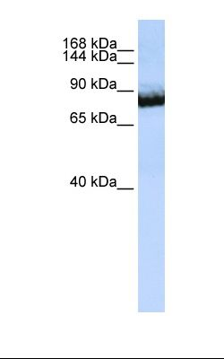 Jurkat cell lysate. Antibody concentration: 1.0 ug/ml. Gel concentration: 6-18%.  This image was taken for the unconjugated form of this product. Other forms have not been tested.