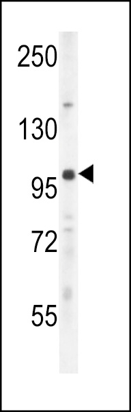 UNK Antibody western blot of mouse lung tissue lysates (35 ug/lane). The UNK antibody detected the UNK protein (arrow).