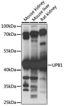UPB1 Antibody - Western blot analysis of extracts of various cell lines, using UPB1 antibody at 1:1000 dilution. The secondary antibody used was an HRP Goat Anti-Rabbit IgG (H+L) at 1:10000 dilution. Lysates were loaded 25ug per lane and 3% nonfat dry milk in TBST was used for blocking. An ECL Kit was used for detection and the exposure time was 30s.