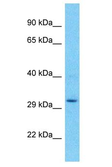 UPLP Antibody - UPK3BL antibody Western Blot of 721_B. Antibody dilution: 1 ug/ml.  This image was taken for the unconjugated form of this product. Other forms have not been tested.