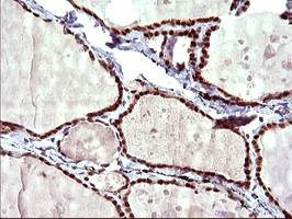 UPRT Antibody - IHC of paraffin-embedded Human thyroid tissue using anti-UPRT mouse monoclonal antibody. (Heat-induced epitope retrieval by 10mM citric buffer, pH6.0, 120°C for 3min).