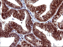 UPRT Antibody - IHC of paraffin-embedded Adenocarcinoma of Human endometrium tissue using anti-UPRT mouse monoclonal antibody. (Heat-induced epitope retrieval by 10mM citric buffer, pH6.0, 120°C for 3min).