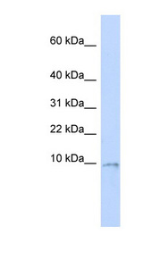 UQCR10 / UCRC antibody LS-C102102 Western blot of MCF7 cell lysate.  This image was taken for the unconjugated form of this product. Other forms have not been tested.